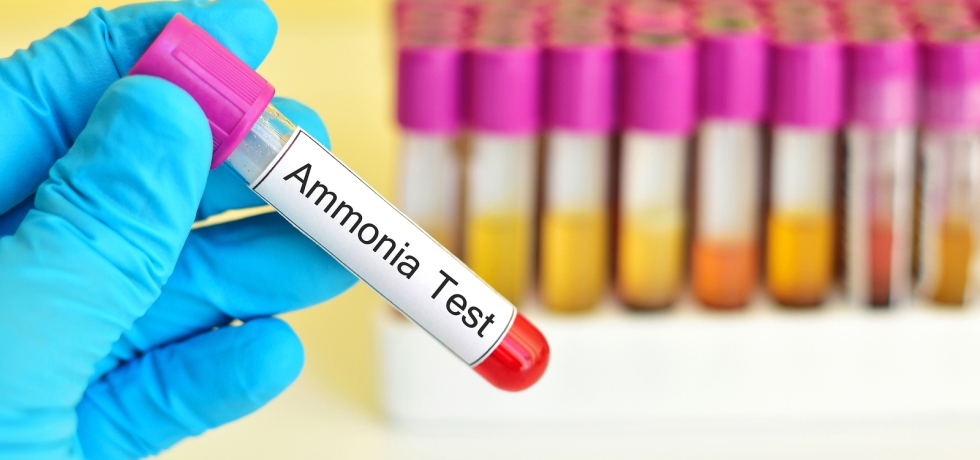 ammonia blood test