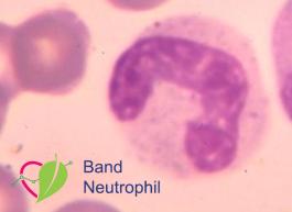 band neutrophils