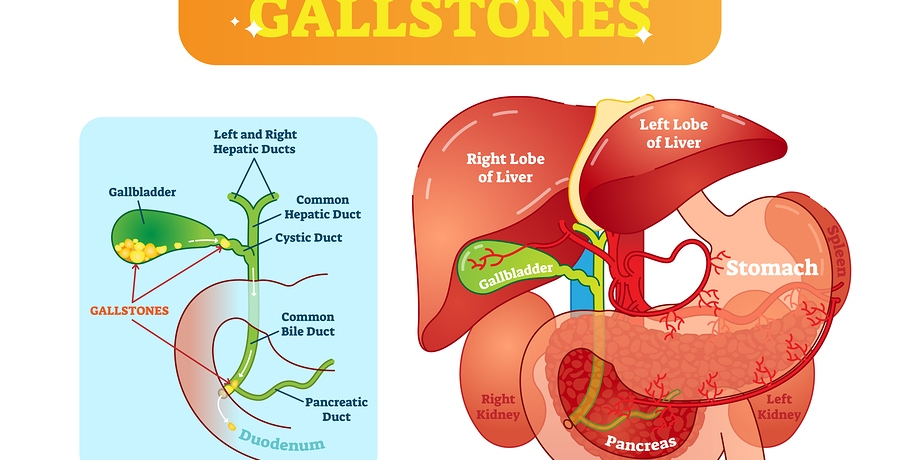 gallstones symptoms definition causes diet removal
