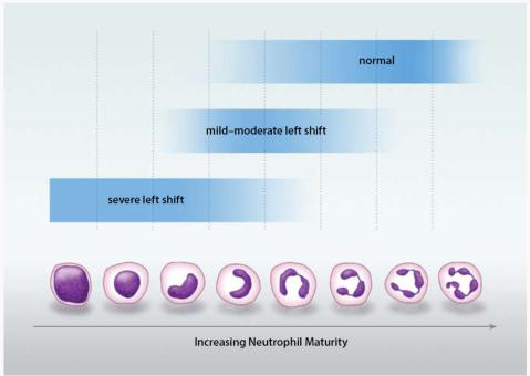 band neutrophils segmented neutrophils