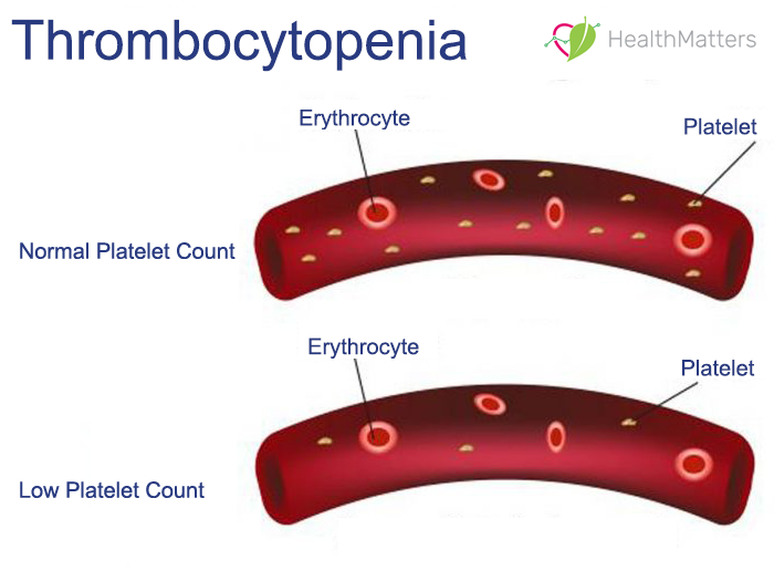 What is Thrombocytopenia low platelet count plateletcrit