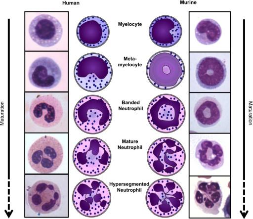 hypersegmented neutrophils high low