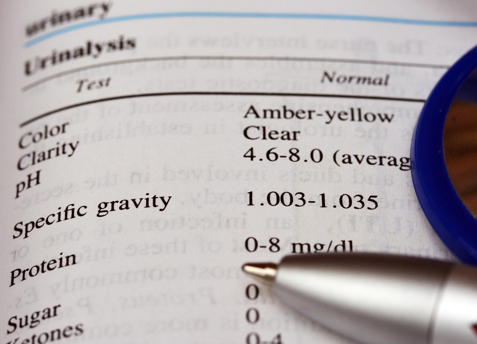 low urine specific gravity