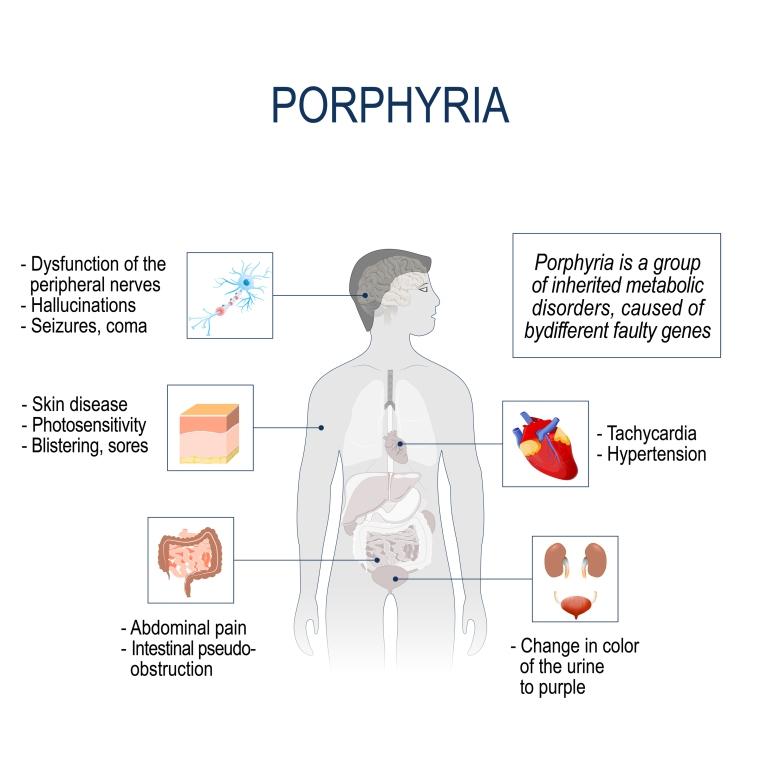 Heptacarboxyporphyrin Porphyria