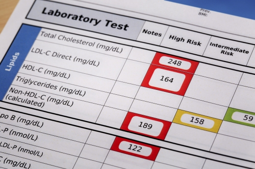 high risk cholesterol  - a detail of blood laboratory screening