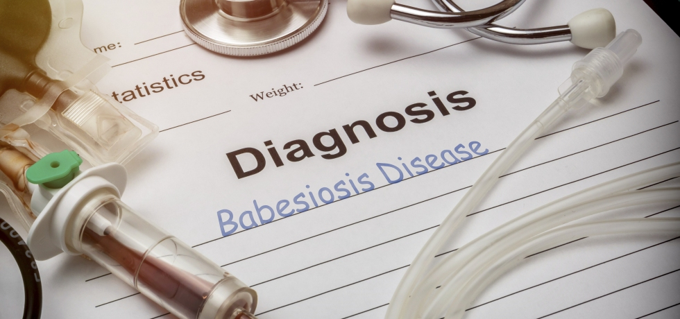 Babesiosis Babesia microti, IgG diagnosis high low meaning tick lyme