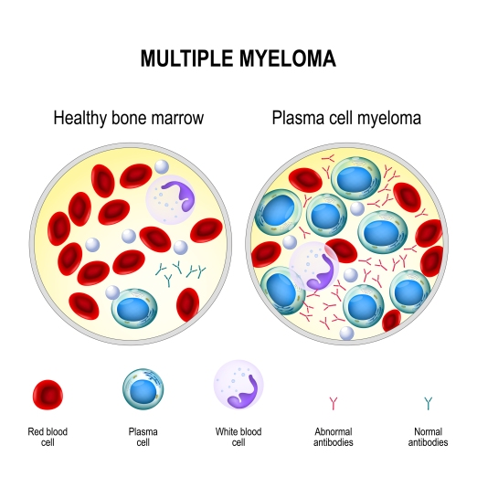 Multiple Myeloma Is A Cancer Of The Bone Marrow. Healthy Plasma