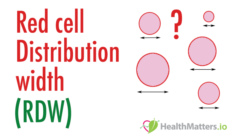 RDW-CV RDW-SD Red Cell Distribution width high low meaning