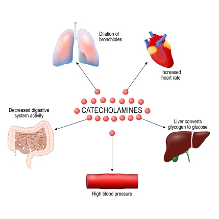 catecholamines stree level high low meaning