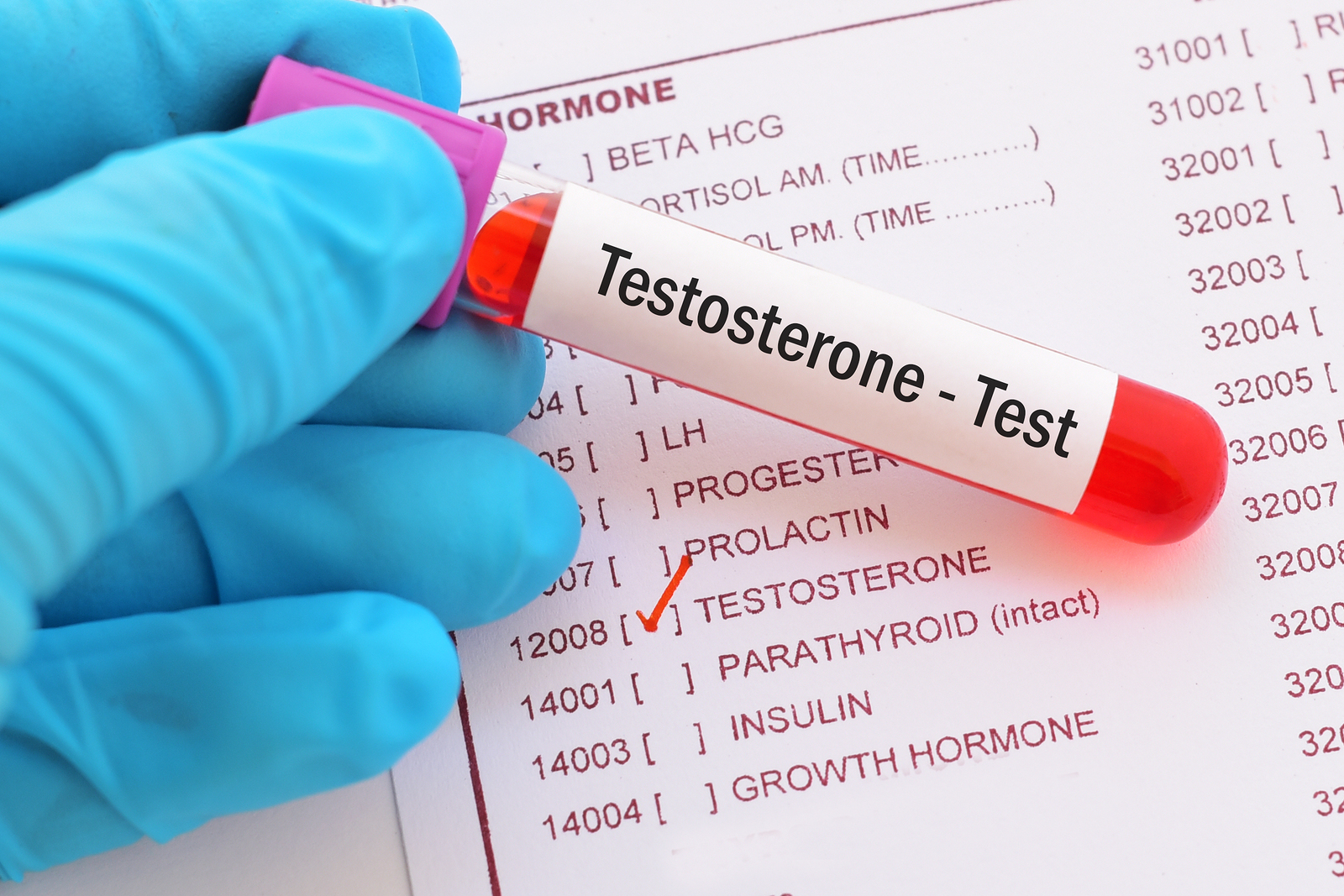 female testosterone high low meaning treatment symptoms