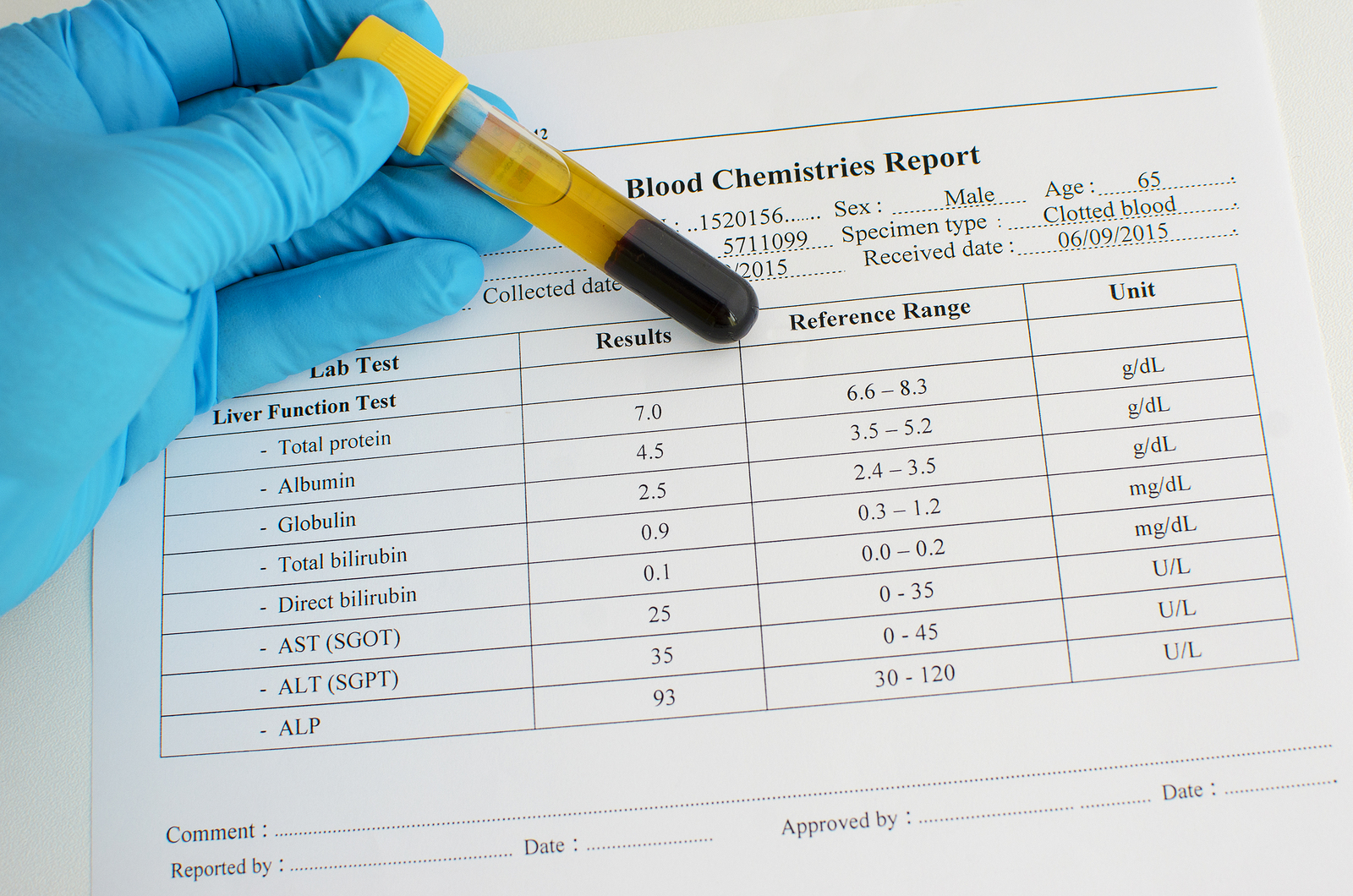 GGT ALP AST ALP Liver test normal results meaning