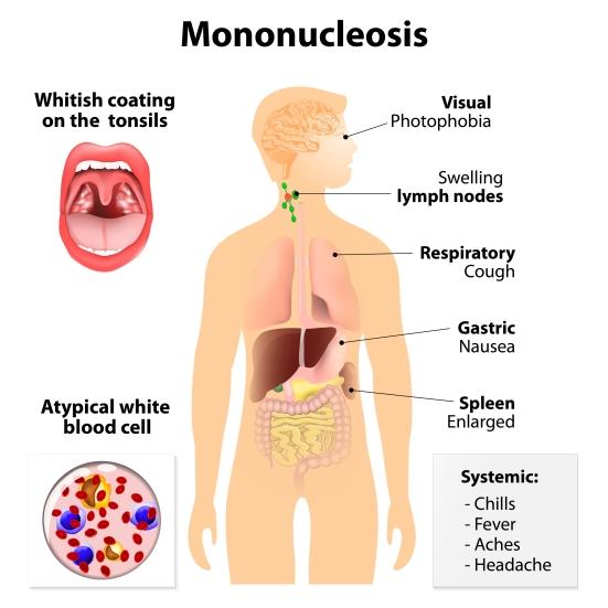Monospot Heterophile antibody Infectious Mononucleosis