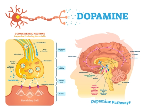 Dopac 3,4-Dihydroxyphenylacetic acid high low meaning treatment results dopamine metabolites