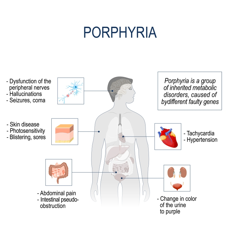 Porphyrins total interpretation high low meaning treatment